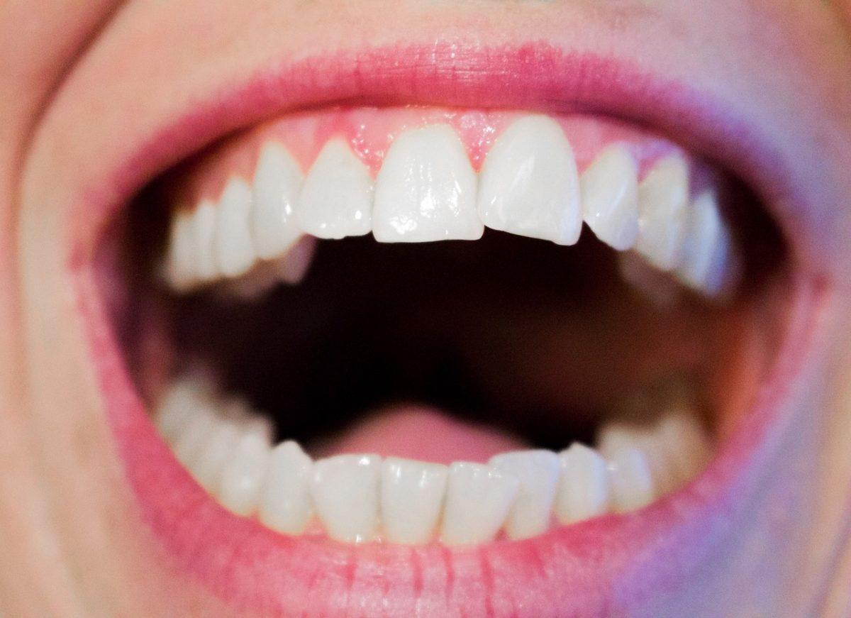 Aktualna technika używana w salonach stomatologii estetycznej zdoła sprawić, że odbierzemy piękny uśmieszek.